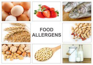 Legge sugli allergeni